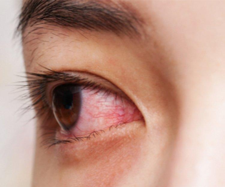 أسباب احمرار العين عند الاستيقاظ