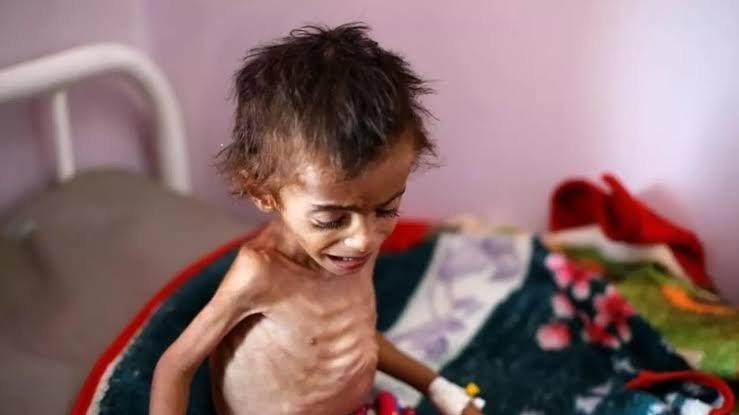 اليمن:  نصف مليون طفل دون سن الخامسة قد يموتون من الجوع في الأسابيع المقبلة